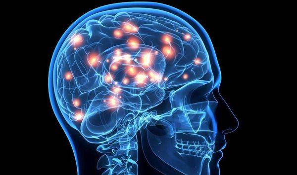 cerebro principal