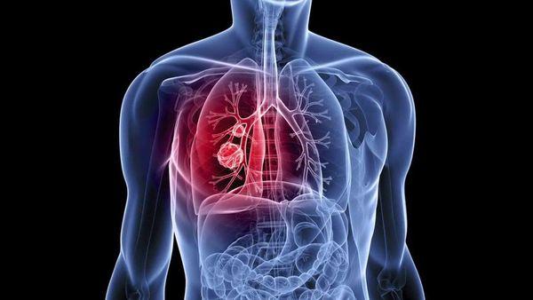 fumar marihuana pulmones