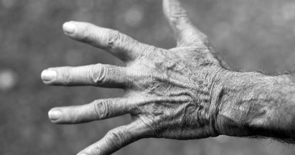 artritis principal